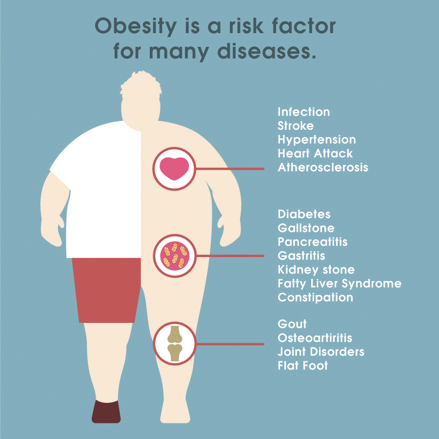 Image result for what is obesity