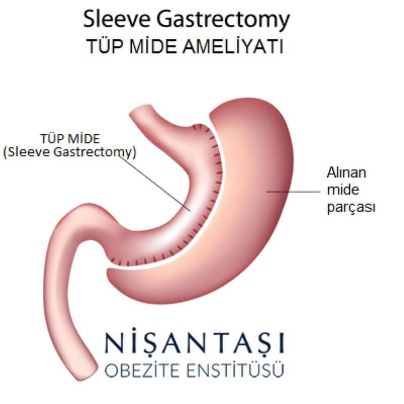 nisantasi-obezite-enstitusu-mide-kucultme-ameliyati
